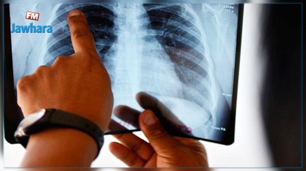 29 حالة إصابة بالسل سنويا في تونس